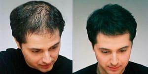 Efecto creación de pelo