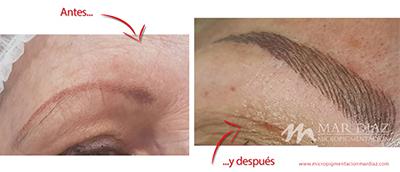 micropigmentación cejas antes y después