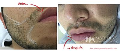 Tricopigmentación barba antes y después