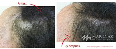 tricopigmentación femenina antes y después