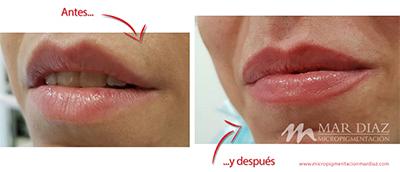 micropigmentación labios antes y después