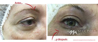 micropigmentación ojos antes y después