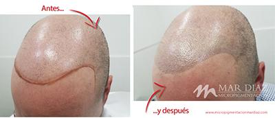 Tricopigmentación antes y después