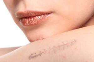 Cursos Micropigmentación Oncológica